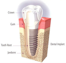 Dental Implants | Colton Family Dental | Devang J. Patel, D.D.S. | Colton, CA 92324