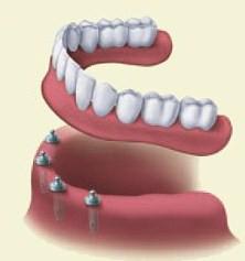 Dentures | Colton Family Dental | Devang J. Patel, D.D.S. | Colton, CA 92324
