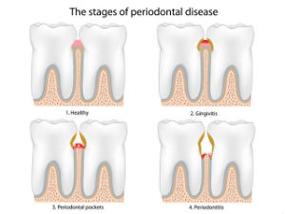 Gum Disease Treatment | Colton Family Dental | Devang J. Patel, D.D.S. | Colton, CA 92324