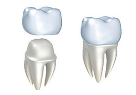 Dental Crowns | Colton Family Dental | Devang J. Patel, D.D.S. | Colton, CA 92324