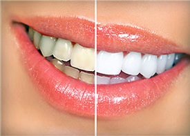 Teeth Whitening | Colton Family Dental | Devang J. Patel, D.D.S. | Colton, CA 92324